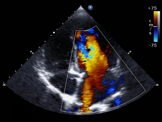 echocardiogram test